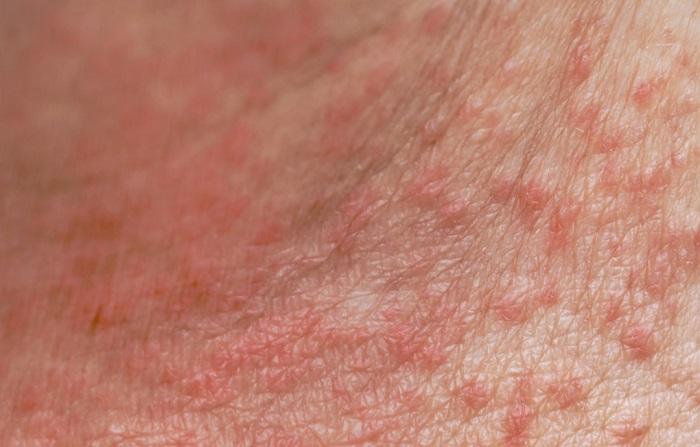 Meredakan gejala alergi