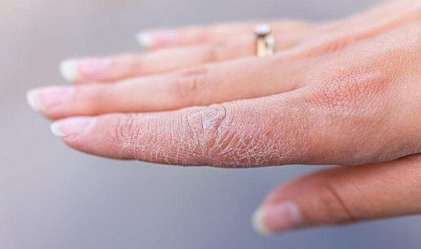Mencegah kulit kering
